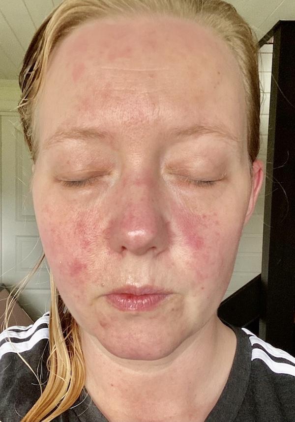 Viser ansikt med røde flekker av allergisk reaksjon, anafylaksi